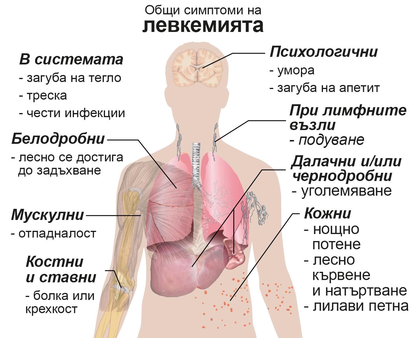 Общи симптоми на левкемията
