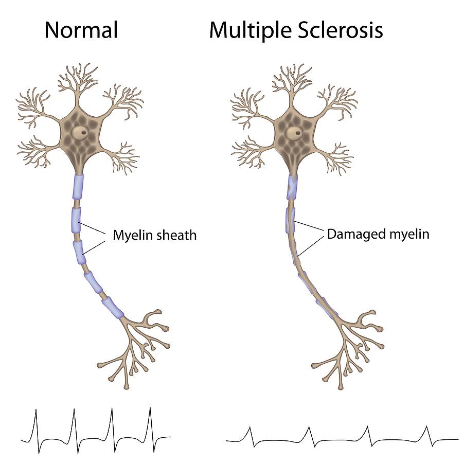 Здрава клетка и клетка поразена от множествена склероза