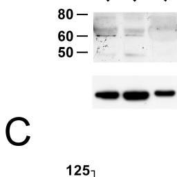 Kабиноид рецепор 1 на Ходжкиновата лимфома