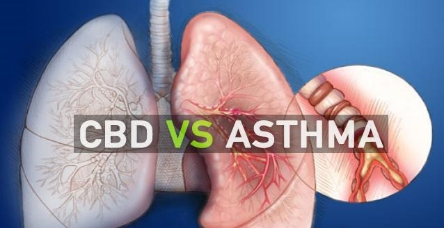 КБД срещу астмата