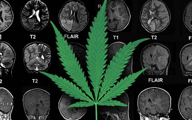 Как канабисът помага при епилепсия - д-р Орин Девински